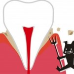 キシリトールガムの虫歯予防は効果は?