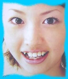 鈴木えみの整形画像2